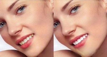 牙齿黄怎么办? 科学有效的牙齿美白方法